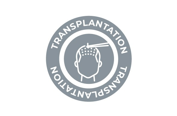 media/image/Shopware_Behandlung-_283x185_Transplantation.jpg
