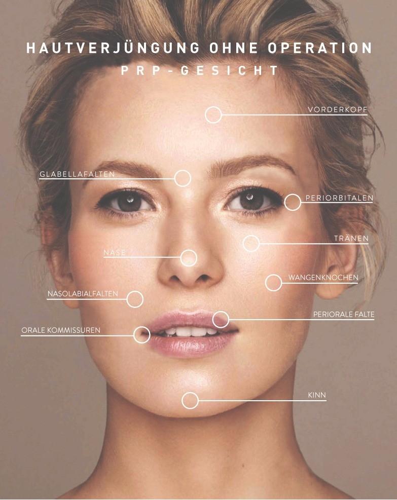 KÖ-HAIR PRP Gesicht - Faltenbehandlung ohne OP | KÖsmetik