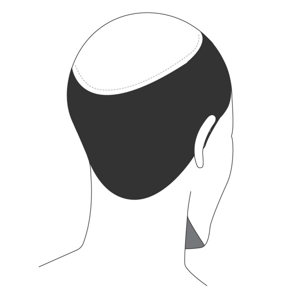 Haarverdichtung große Fläche