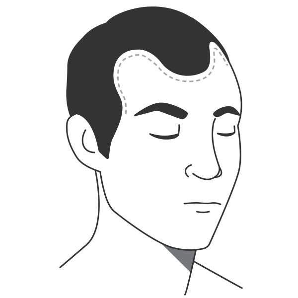Pigmentieren zurückgehender Haaransatz/Geheimratsecken
