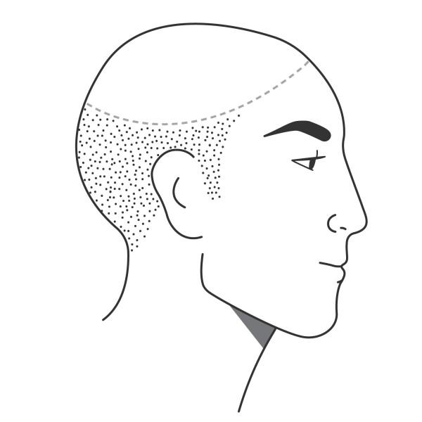 Pigmentierung einer Glatze(Teilbereiche)