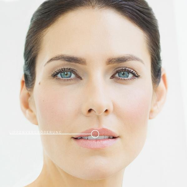 KÖ-KLINIK Lippenunterspritzung