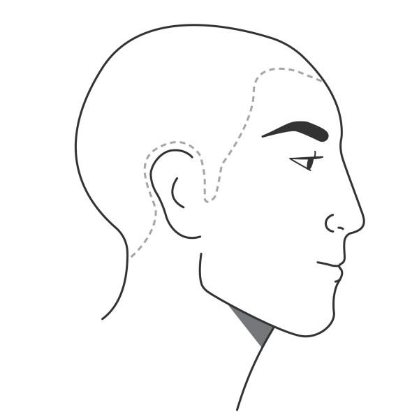Pigmentierung des komplett kahlen Kopfes