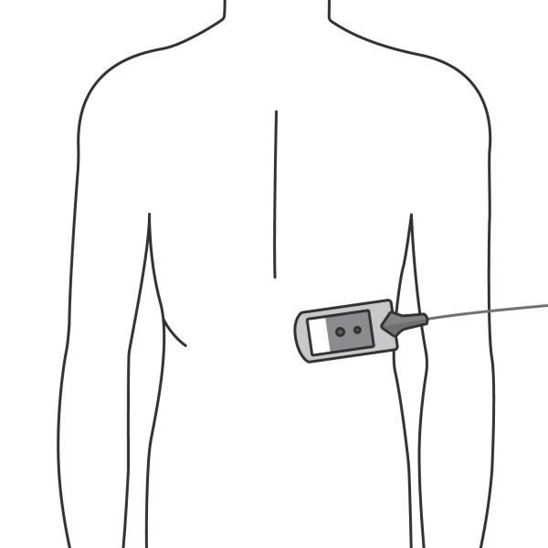 Rechte Rückenseite
