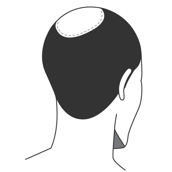 Haarverdichtung kleine Fläche